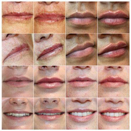 lipswebsite2.jpg